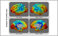 Appeared in Winkler et al. (2012), Neuroimage. [http://dx.doi.org/10.1016/j.neuroimage.2012.03.026]